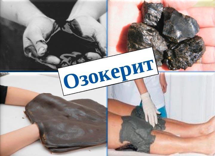 Процедура озокерита