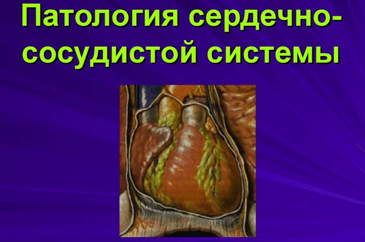 Сердечные паталогии