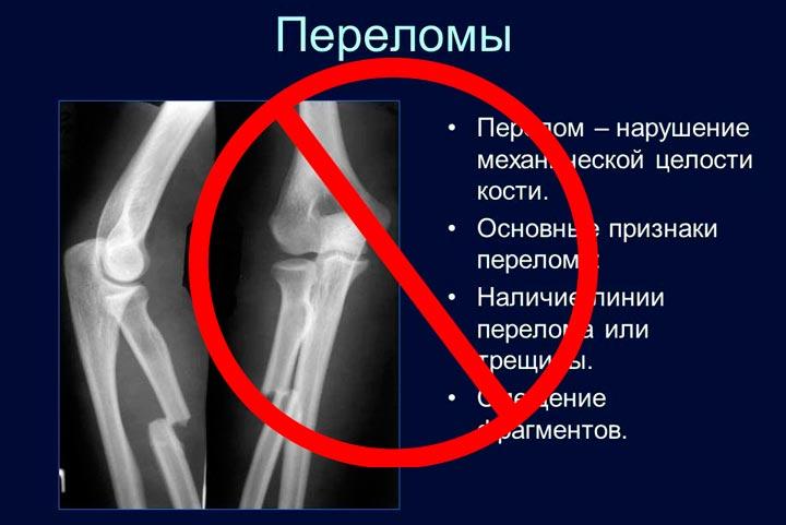 Запрещены СМТ процедуры при наличии переломов