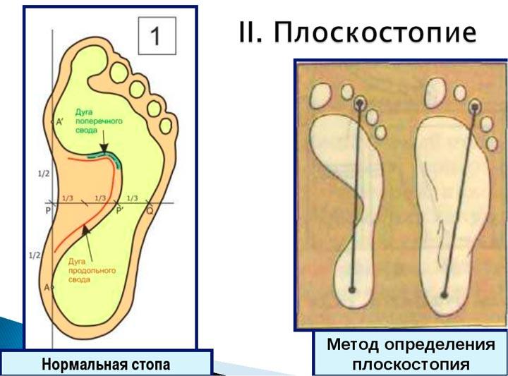 Плоскостопие - одна из причин проблем со стопой