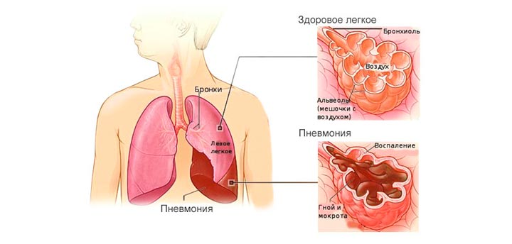 Пневмония может привести к артриту