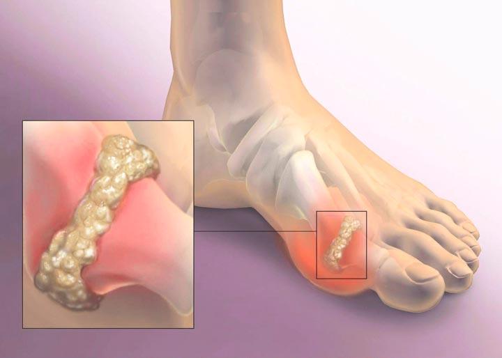 Подагра - причина артрита