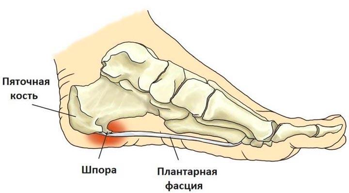 Пяточная шпора может вызывать сильные и продолжительные боли в пятке