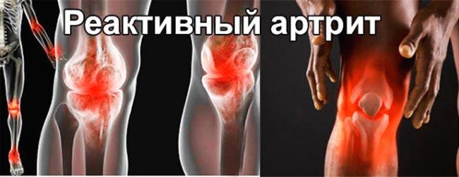 Реактивный полиартрит
