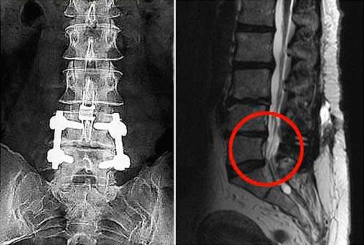 Рентгенография - метод длиагностики защемления седалищного нерва