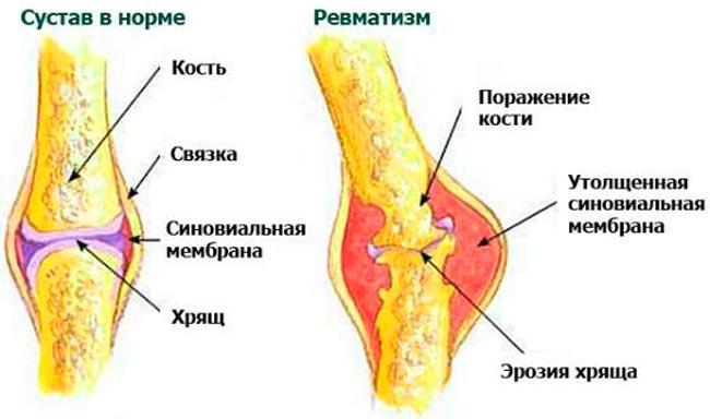 Ревматизм суставов