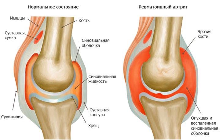 ПНВП применяются приревматоидном артрите