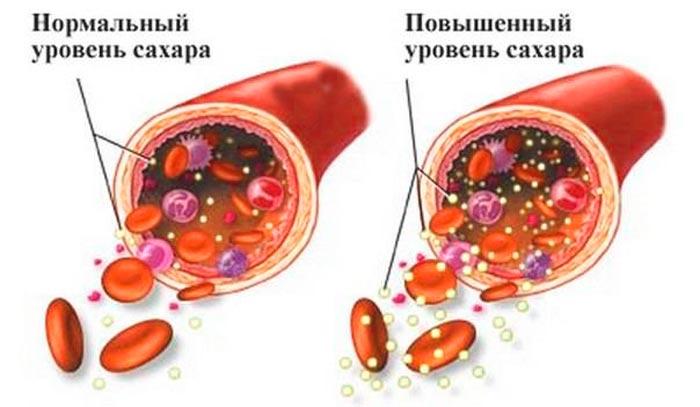 Люди с сахарным диабетом попадают в группу риска заболевания артритом
