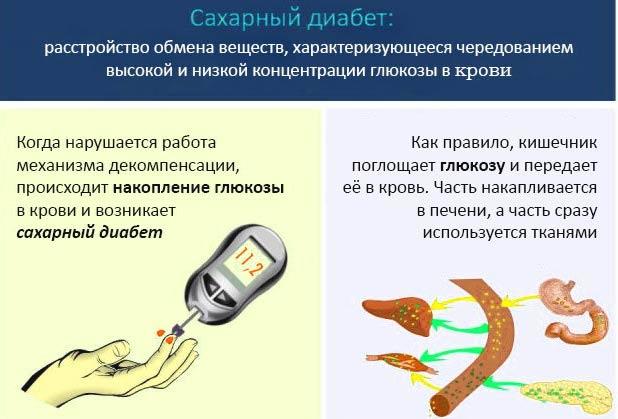 Заболевание - сахарный диабет