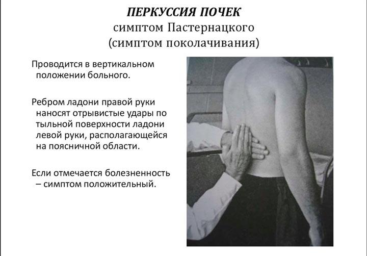 Благодаря симптому Пастернацкого можно определить характер боли в правом подреберье