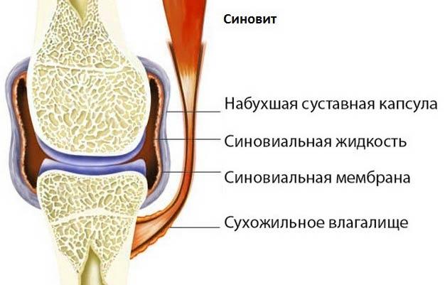 Хроническое воспаление оболочек коленного сустава. Он же - синовит.