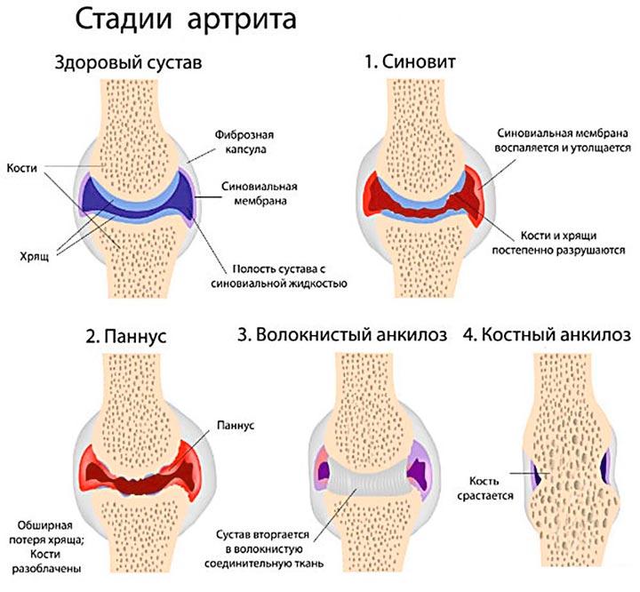 Основные стадии артрита
