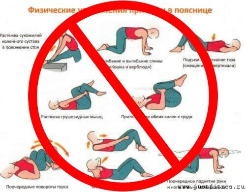 Упражнения при болях в спине запрещены