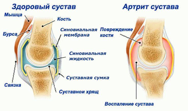Воспаление синовеальных тканей при артрите