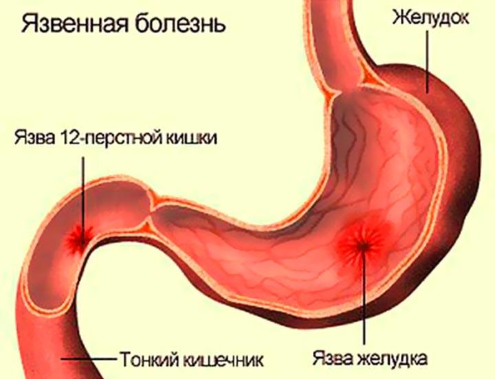 Язва желудка - причина острой боли в правом подреберье