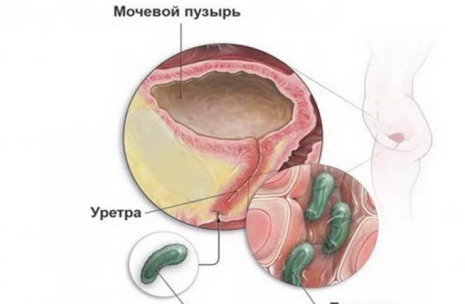 Воспалительные заболевания уретры