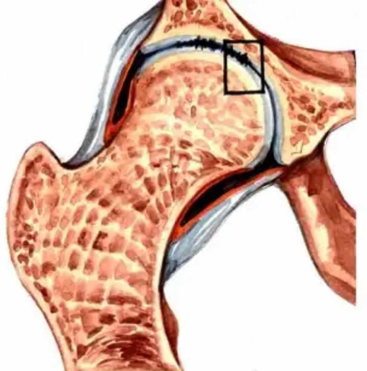 Разрушение сустава - коксартоз 1 стадии