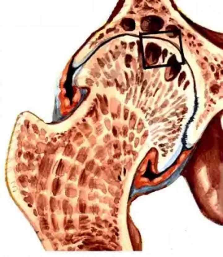 Разрушение сустава - коксартоз 3 стадии