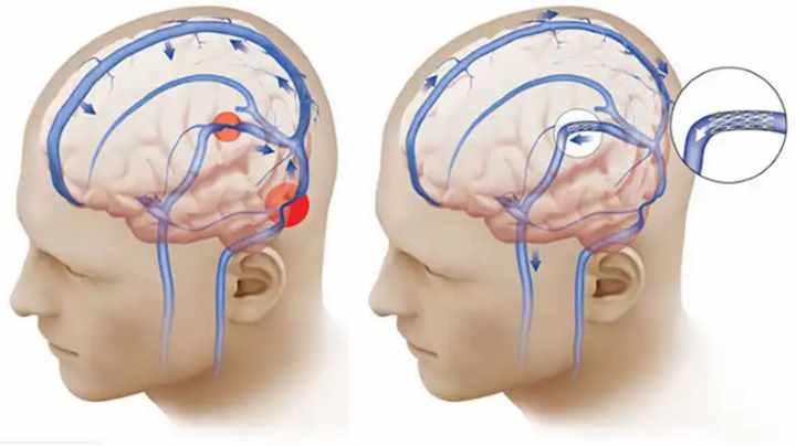 Стадия шейного остеохондроза - Гипертензивный синдром