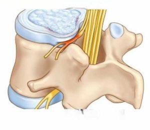 Стадия шейного остеохондроза - Корешковый синдром