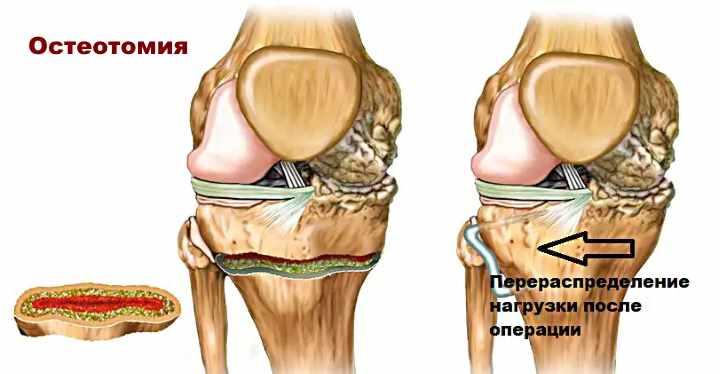 Операция от артроза - Остеотомия
