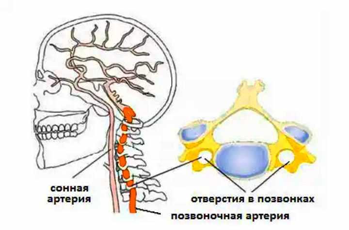 Стадия шейного остеохондроза - Синдром позвоночной артерии