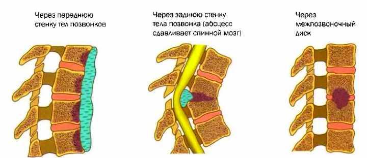Появление туберкулеза позвоночника