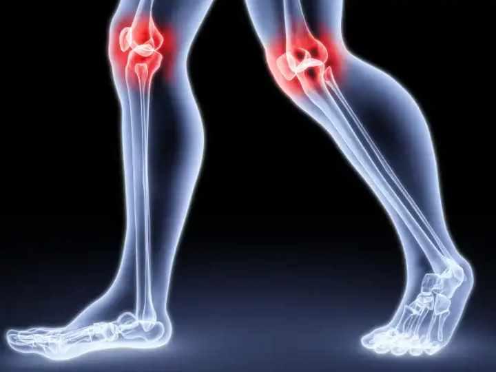 Артрит и артроз – в чем разница, чем отличается артрит от артроза? Симптомы артрита и артроза. Какой врач лечит артрит и артроз суставов? — Суставы