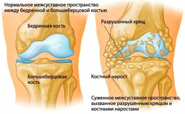Заболевание колена - артрит