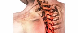 Воспаление шейного отдела