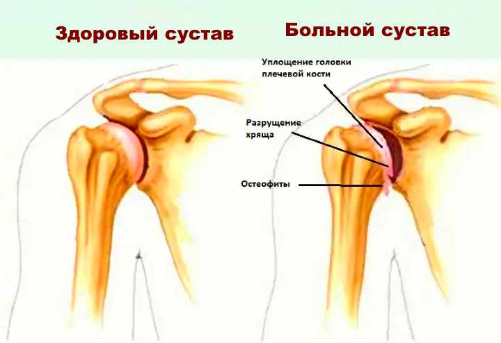 Плечевой сустав: строение
