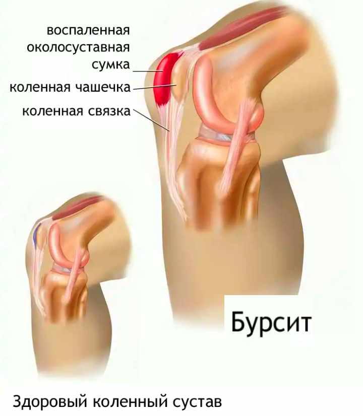 Заболевание колена - бурсит