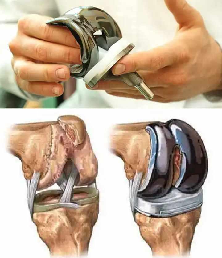 Внешний вид протеза для сустава