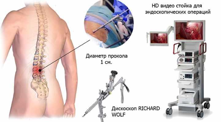 Операбельное удаление позвоночной грыжи - эндоскопия