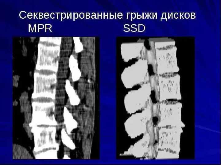 МРТ грыжи позвоночной