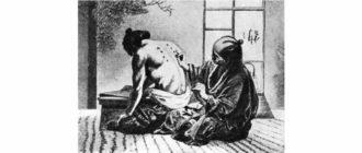 Как происходило иглоукалывание в древности