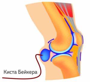 Схема образования жидкости в колене