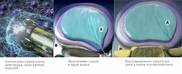 Операбельное удаление позвоночной грыжи - нуклеопластическое лечение