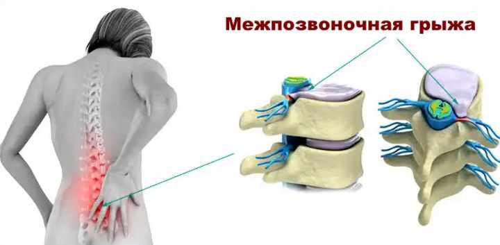 Симптомы позвоночной грыжи
