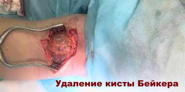 Фото операции по удалению кисты