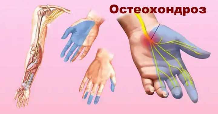 Схема онемения руки