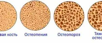 Стадии разрушения костной ткани