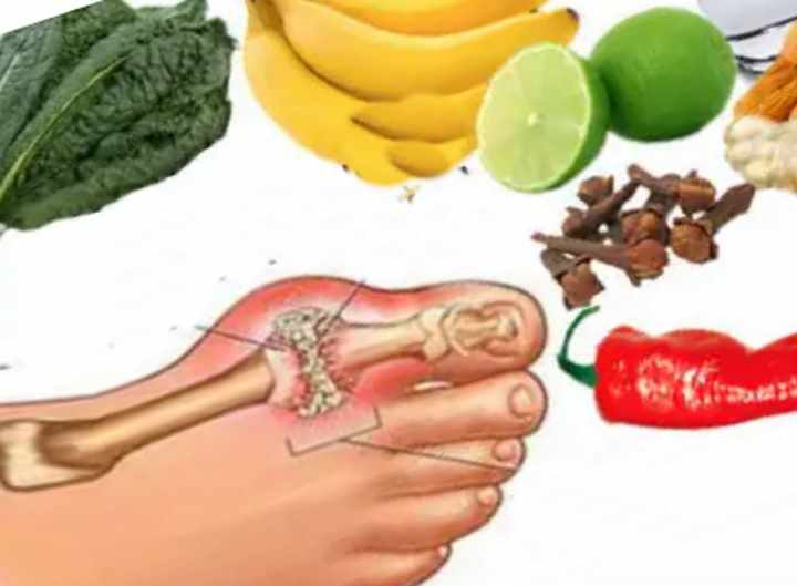 Подагра ревматоидный артрит диета