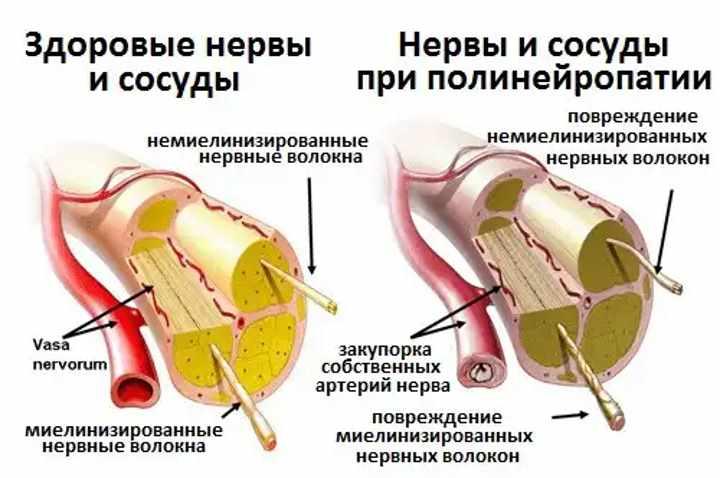 Сосуды при полинеропатии