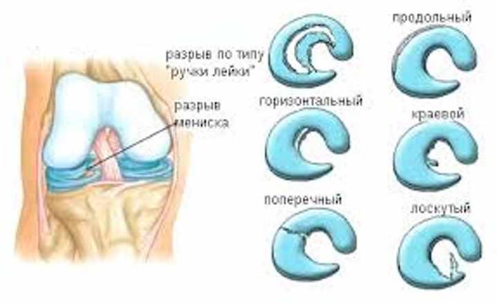 Возможные осложнения после артроскопии