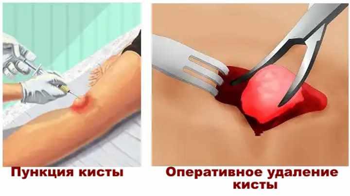 Как берется пункция с колена