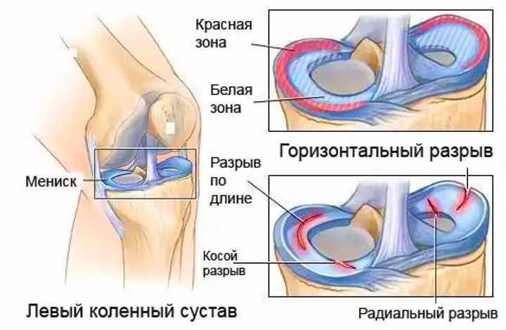 Заболевание колена - проблемы с мениском