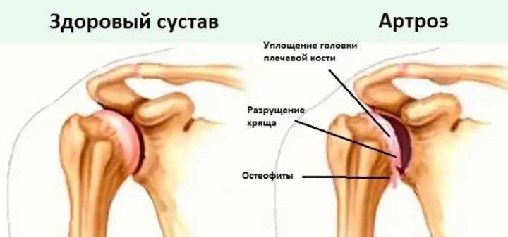 Здоровый и больной артрозом сустав