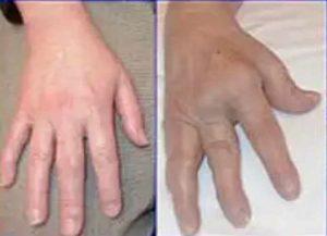 Фото артрита рук