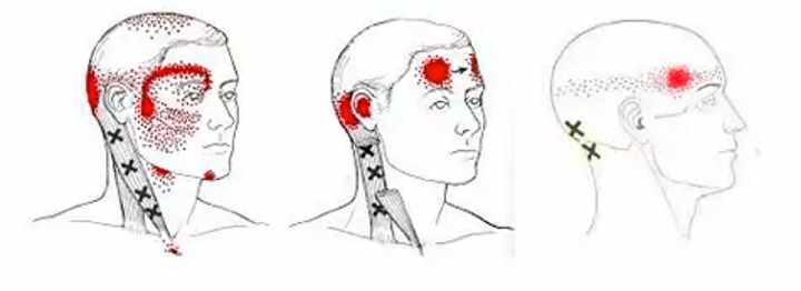 Стадия шейного остеохондроза - шейная мигрень
